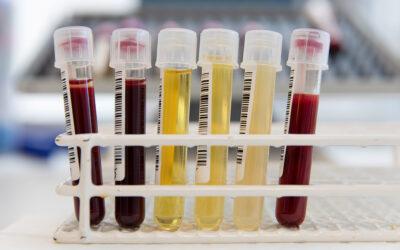 Ny DNA-teknik upptäcker cancer och utreder brott